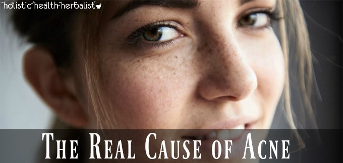 The Real Cause of Acne - girl with clear skin