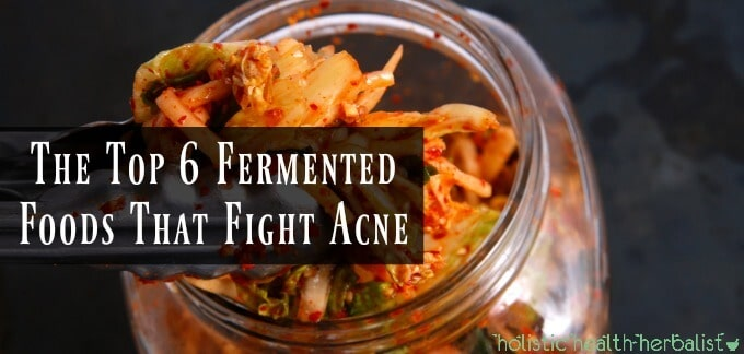 The Top 6 Fermented Foods That Fight Acne