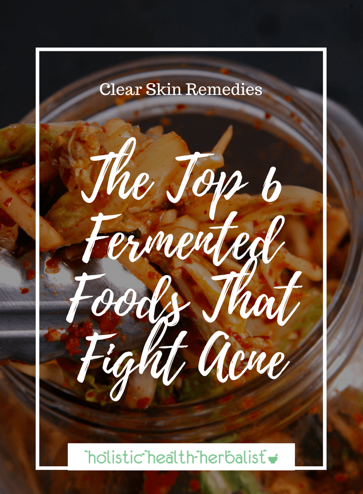 The Top 6 Fermented Foods That Fight Acne - Learn about which fermented foods you can incorporate into your diet that will help fight acne from the inside out.