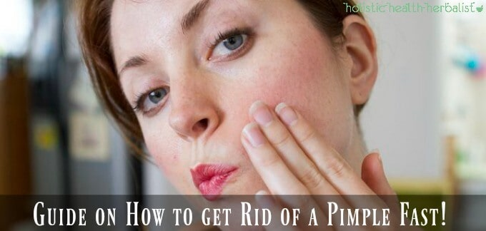 Learn How to get Rid of a Pimple Fast!