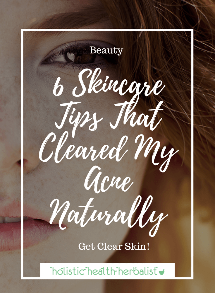 6 Skincare Tips That Cleared My Acne Naturally- Learn about my top acne remedies that will get your skin clear fast! #acne #skincare #beauty #clearskin