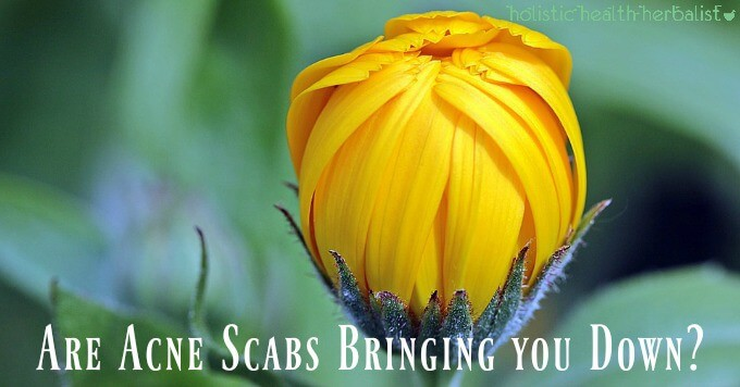 Are Acne Scabs Bringing you Down?