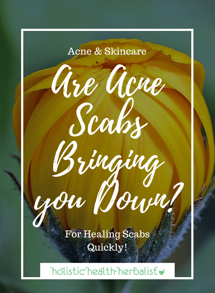 Are Acne Scabs Bringing you Down? - Learn which remedies are best for carefully healing acne scabs and keeping redness and scarring at bay.