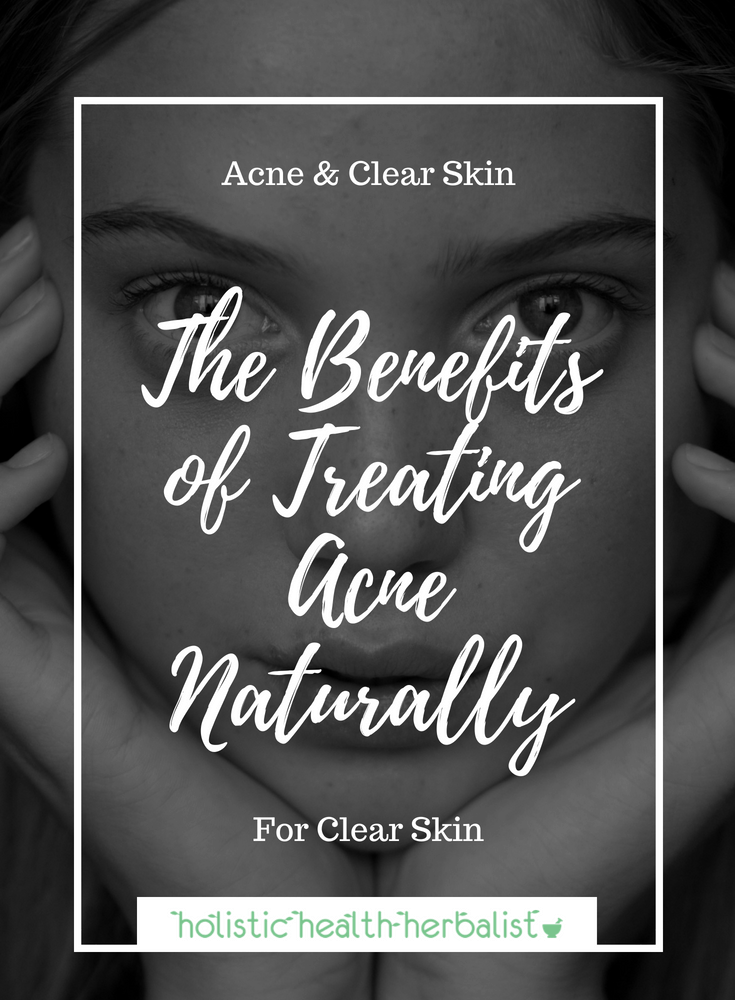 The Benefits of Treating Acne Naturally and A Little Story - Learn how I came to the crunchy lifestyle in order to regain my health and clear my acne naturally.