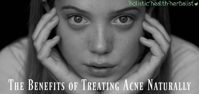 The Benefits of Treating Acne Naturally - A Little Story