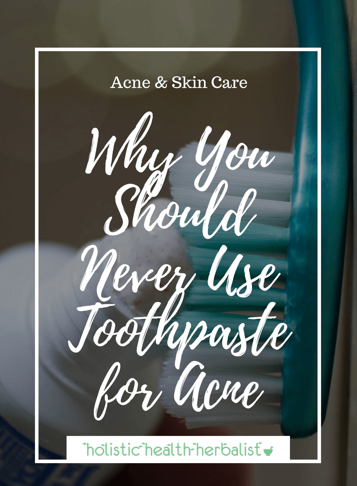 Why You Should Never Use Toothpaste for Acne - Learn how toothpaste can actually make your acne and scarring worse if used on blemishes.