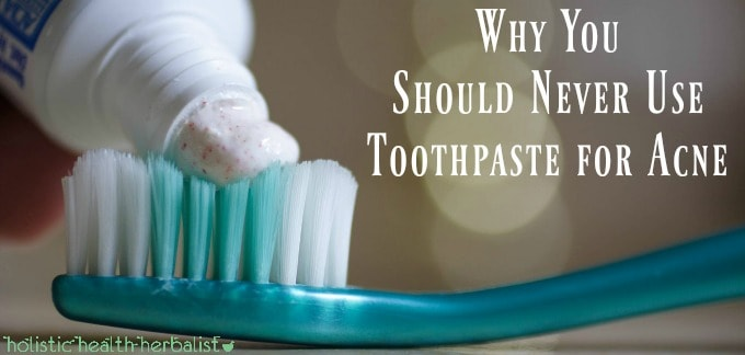 Why You Should Never Use Toothpaste for Acne