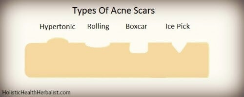 The different types of acne scars.