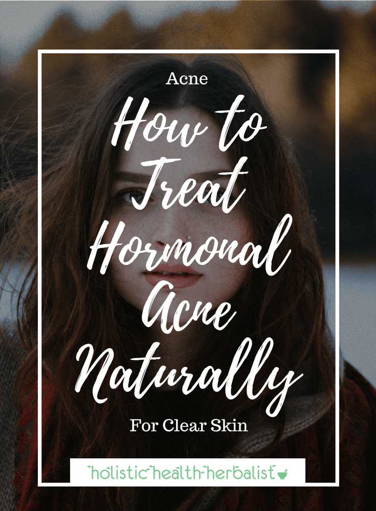 How to Treat Hormonal Acne Naturally - These are my tips and tricks that help control and ultimately heal hormonal acne breakouts - for good!