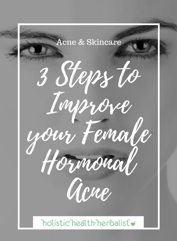 3 Steps to Improve Your Female Hormonal Acne - Learn about the three most fundamental steps to beating hormonal acne naturally.