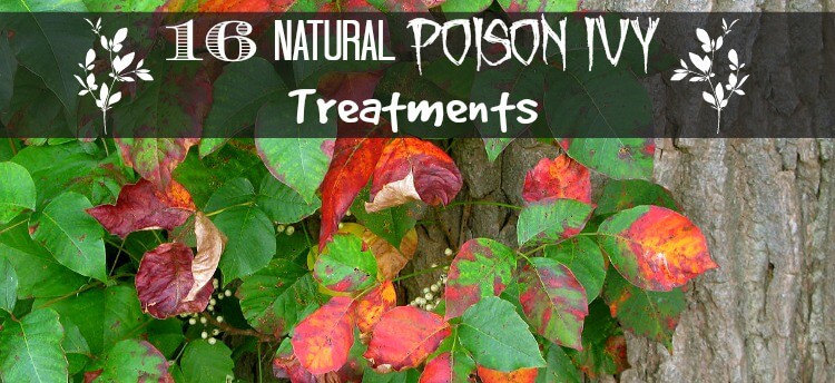 Natural poison ivy treatments.