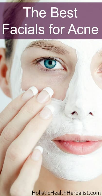 The Best Facials for Acne - Learn about my tried and true facial recipes that purge and tighten pores, sooth irritation, and reveal fresh supple skin!