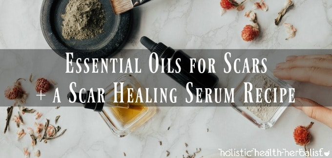 Essential Oils for Scars and a Scar Healing Serum Recipe - Photo of skincare ingredients
