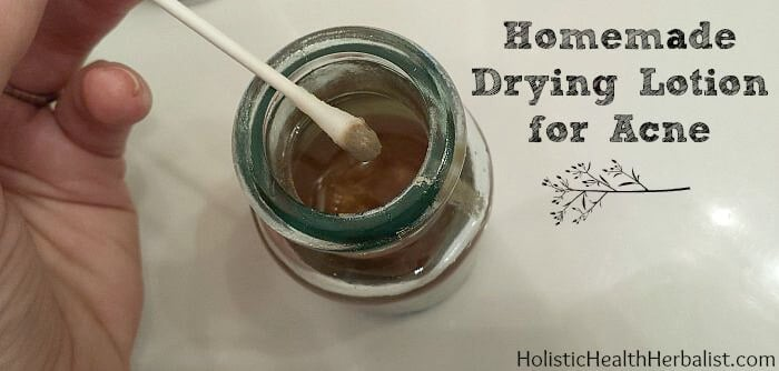 How to make a homemade drying lotion for acne prone skin.