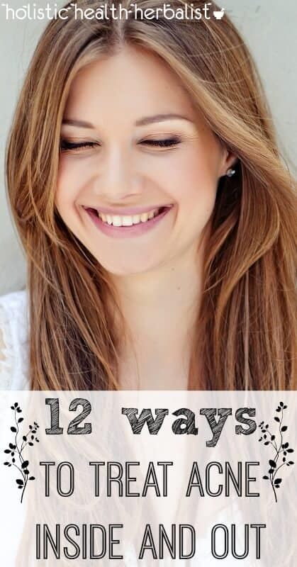12 Ways to Treat Acne Inside and Out - Learn how to treat acne inside and out with chemical free ingredients that unclog pores, balance sebum, and beautify the skin while living healthy!