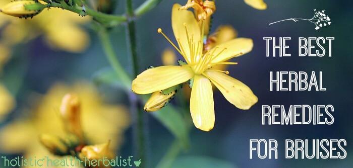 Top Herbal Remedies for Bruises