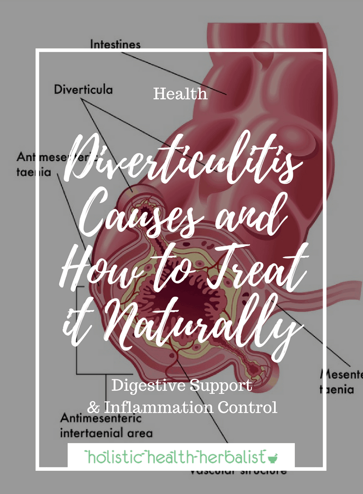Diverticulitis Causes and How to Treat it Naturally - Learn about the best ways to prevent and treat diverticolosis and diverticulitis naturally through proper diet, supplementation, and the use of essential oils.